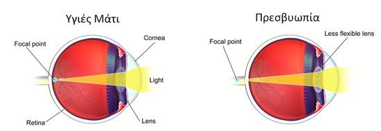 37eea2dde0 Στην πρεσβυωπία το μάτι πλέον δεν είναι σε θέση να εστιάσει το φως  απευθείας στον αμφιβληστροειδή