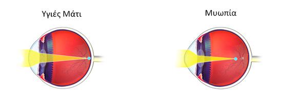 Στη μυωπία το μάτι έχει επίμηκες σχήμα και η εστίαση λαμβάνει χώρα μπροστά από τον αμφιβληστροειδή.