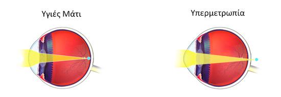 Στην υπερμετρωπία οι οπτικές ακτίνες δε συγκλίνουν πάνω στον αμφιβληστροειδή αλλά πίσω από αυτόν.
