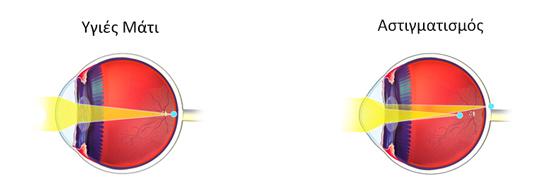 Στον αστιγμάτισμό ο κερατοειδής χιτώνας δεν είναι ομαλός και οι ακτίνες φωτός δεν διαθλώνται σωστά.