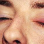 Χαλάζιο στο μάτι - Αιτίες, συμπτώματα, διάγνωση, θεραπεία, πρόληψη