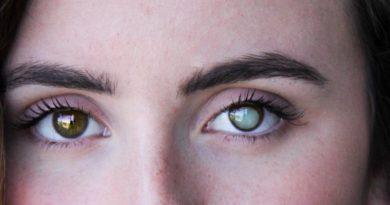 Καταρράκτης ματιών