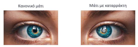Καταρράκτης ματιών παράδειγμα πριν και μετά
