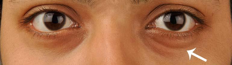 Οι μαύροι κύκλοι στα μάτια εμφανίζονται και στους άντρες και στις γυναίκες.