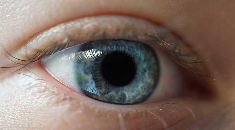Μυγάκια στα μάτια - Τι είναι και πότε φέυγουν