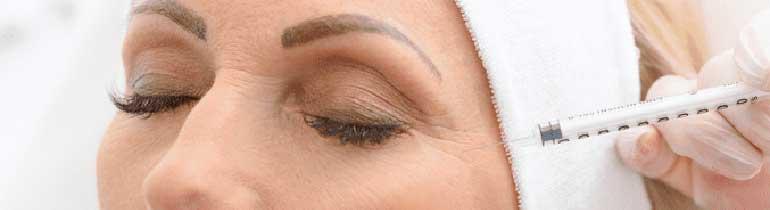 Botox για τις ρυτίδες των ματιών