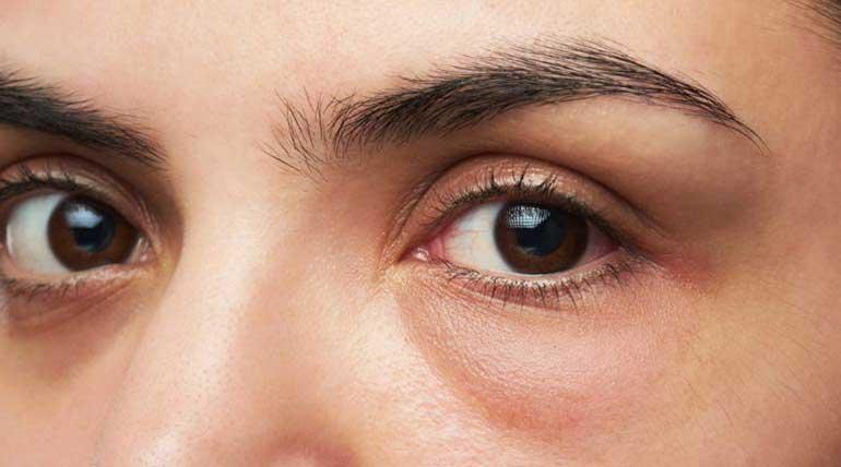 Σακούλες στα μάτια - Μάθετε τα πάντα και πως να τις αντιμετωπίσετε