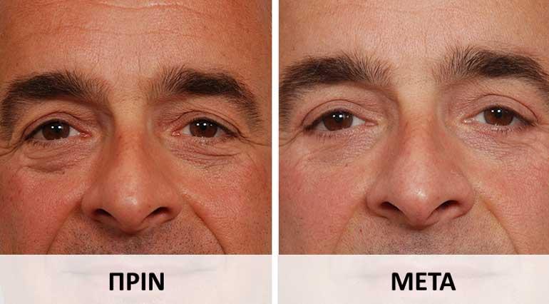 Σακούλες στα μάτια στους άντρες - πριν και μετά